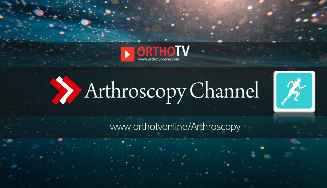 - OrthoTV Arthroscopy - Arthroscopy Channel