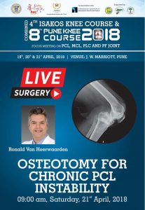 - ostietomy for chronic pcl 207x300 - Pune Knee Course / ISAKOS Knee Course Live Streaming – IORG