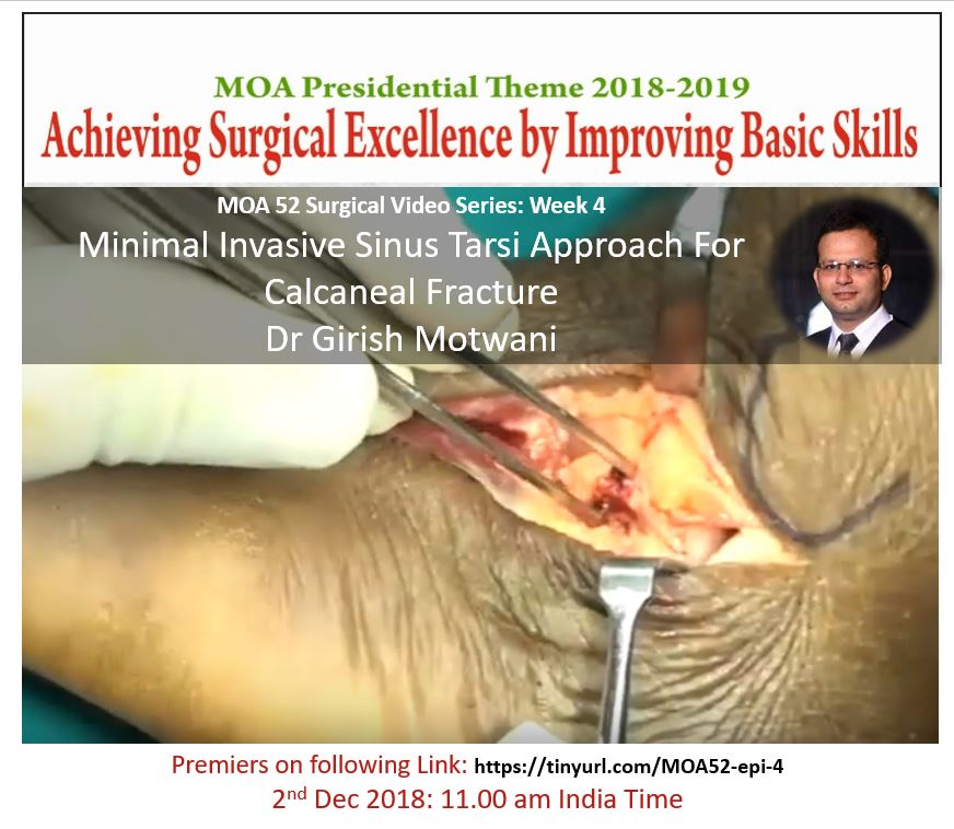 - 4 - MOA 52 Video Series: Minimal Invasive Sinus Tarsi Approach For Calcaneal Fracture Dr Girish Motwani