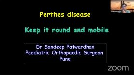 IFICS-IPT-7 Perthes disease Simplified : Dr Sandeep Patwardhan
