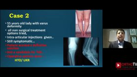 IOACON 2020: Webinar 1:  OA Knee: Mistakes Made and Lessons Learnt  How they shaped me by Dr Parag Sancheti