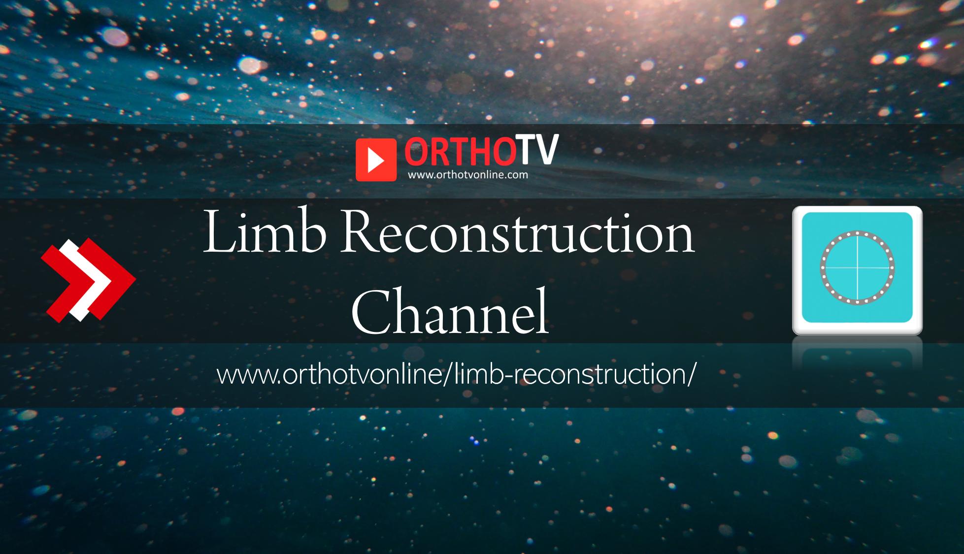 - OrthoTV Limb Reconstruction Channel - Limb Reconstruction