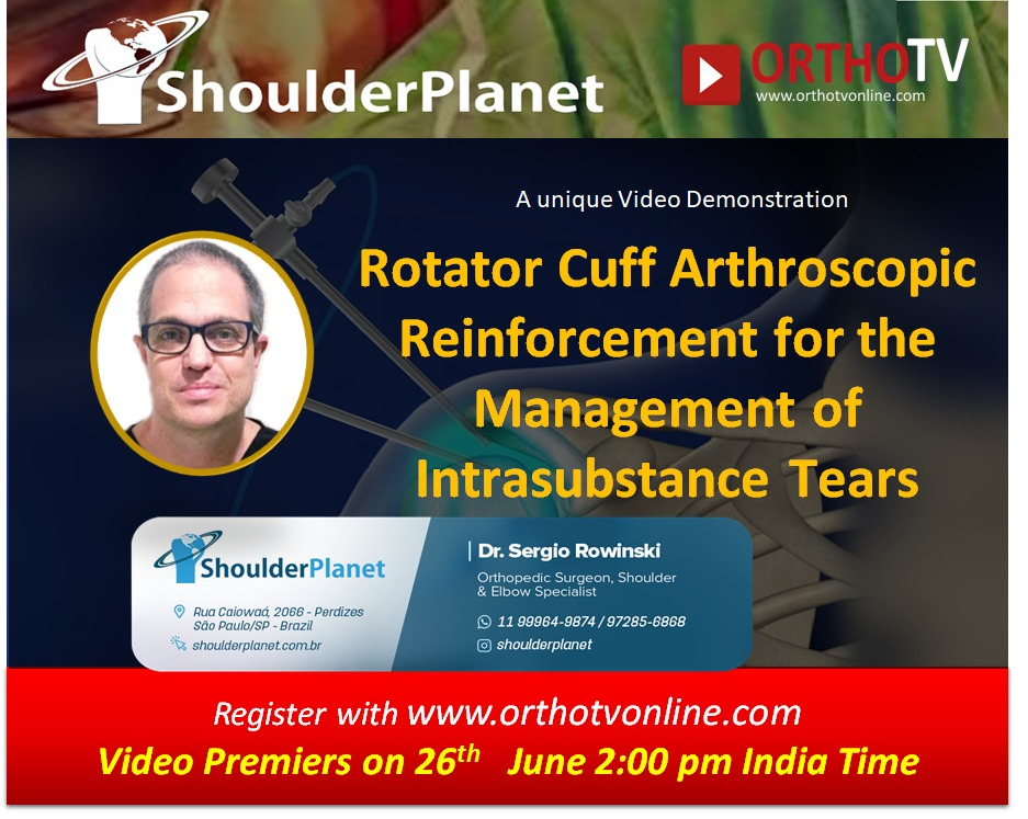 - WhatsApp Image 2020 06 26 at 12 - Rotator Cuff Arthroscopic Reinforcement for the Management of Intrasubstance Tears by Dr Sergio Rowinski