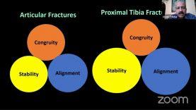 Jharkhand Orthopaedic Associaiton Webianr 2: Proximal Tibia Fracture