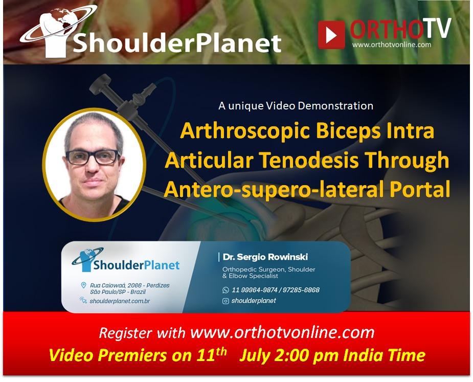 - WhatsApp Image 2020 07 11 at 10 - Arthroscopic Biceps Intra Articular Tenodesis Through Antero-supero-lateral Portal by Dr Sergio Rowinski