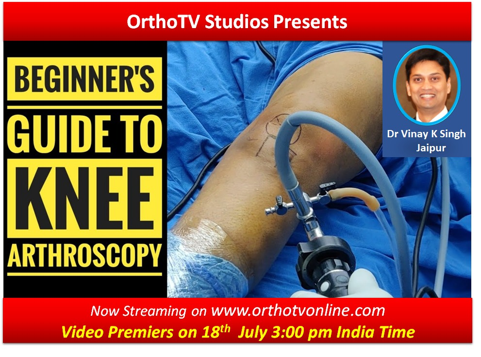 - WhatsApp Image 2020 07 18 at 11 - Beginners Guide to Knee Arthroscopy : An excellent video for all arthroscopy Surgeon by Dr Vinay Kumar Singh