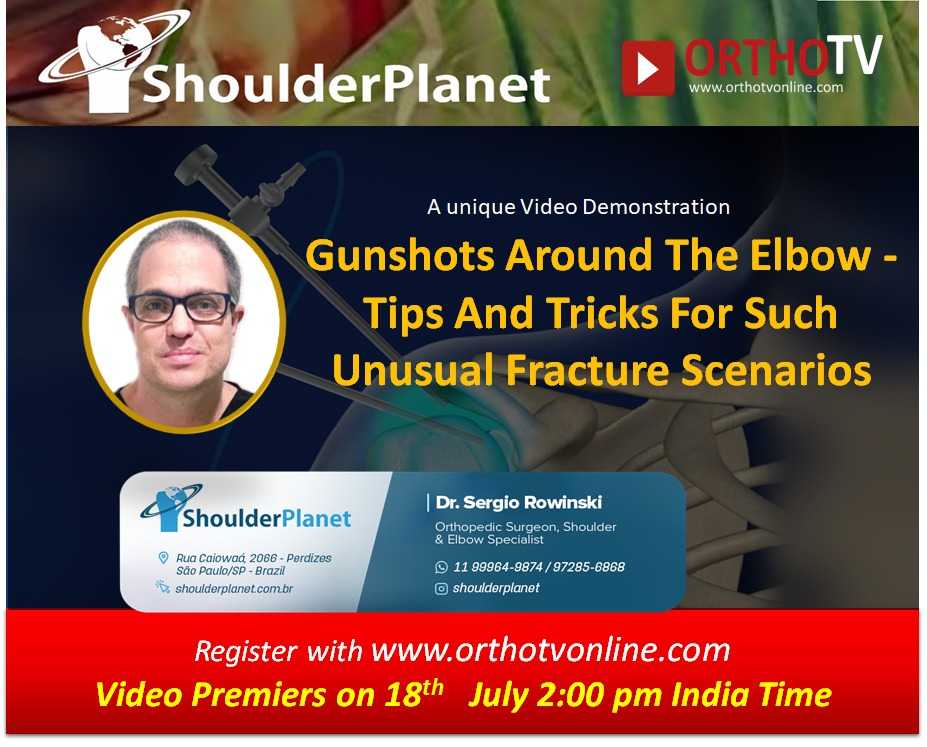 - WhatsApp Image 2020 07 18 at 11 - Gunshots Around The Elbow – Tips And Tricks For Such Unusual Fracture Scenarios by Dr Sergio Rowinski