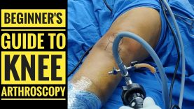 Beginners Guide to Knee Arthroscopy : An excellent video for all arthroscopy Surgeon by Dr Vinay Kumar Singh