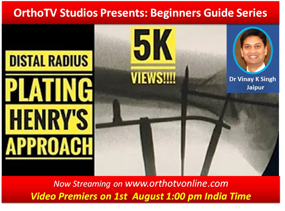 - WhatsApp Image 2020 08 01 at 1 - Beginners Guide Series : Distal Radius Plating Henry's Approach by Dr Vinay Kumar Singh