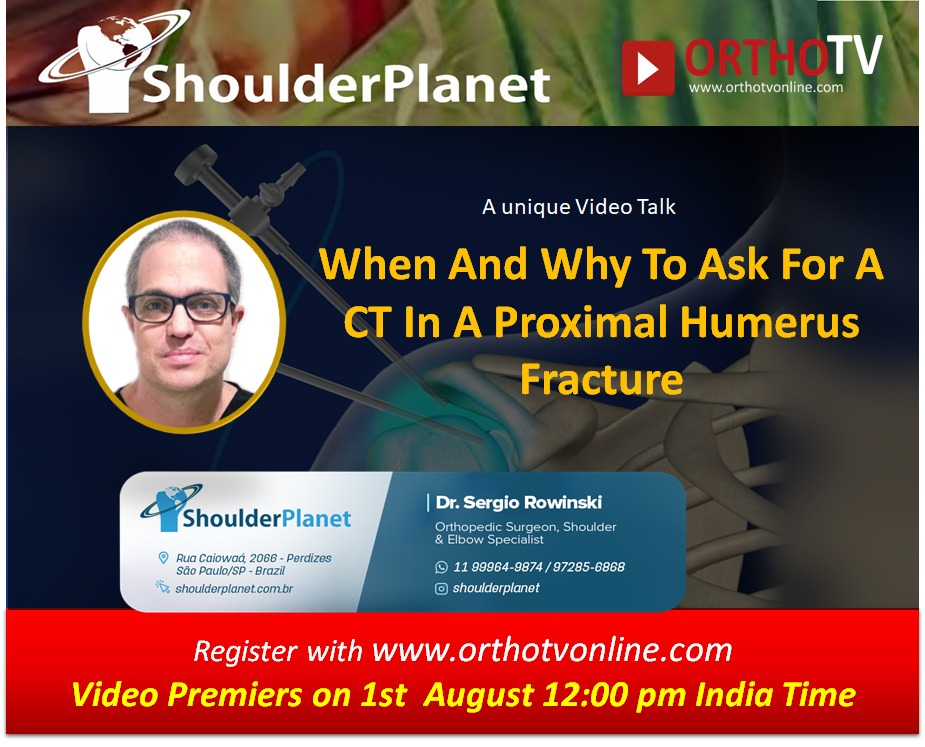 - WhatsApp Image 2020 08 01 at 1 - OrthoTV Shoulder Planet Series :  When And Why To Ask For A CT In A Proximal Humerus Fracture by Dr Sergio Rowinski