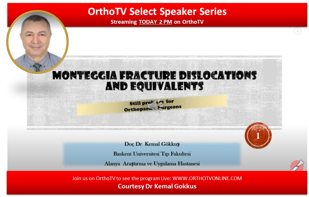 - WhatsApp Image 2020 08 05 at 12 - Monteggia Fracture and Equivalents: A Basic Concept Lecture by  Dr Kemal Gokkus
