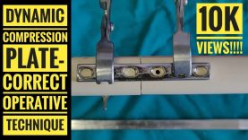 Beginners Guide Series : Dynamic Compression Plate (DCP)- Correct Operative Technique: Tips & Tricks by Dr Vinay Kumar Singh