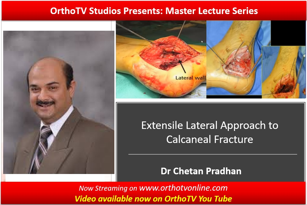 - 3e63196c eed2 427d a1e2 91dfea304641 - The Master Lecture Series: Extensile Lateral Approach to Calcaneal Fracture by Dr Chetan Pradhan