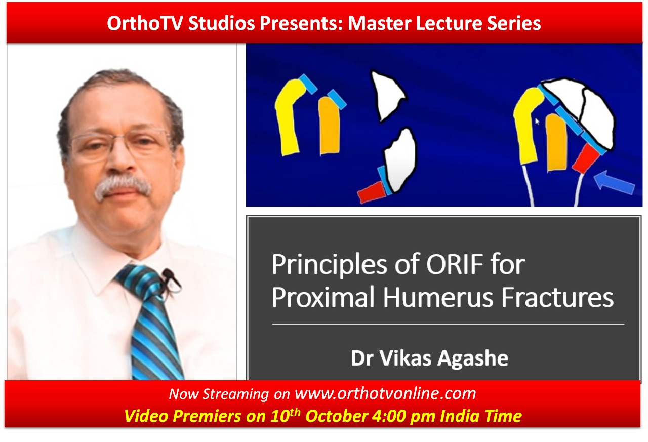 - WhatsApp Image 2020 10 10 at 11 - OrthoTV Studios Presents: Master Lecture Series: Principles of ORIF for Proximal Humerus Fractures by Dr Vikas Agashe