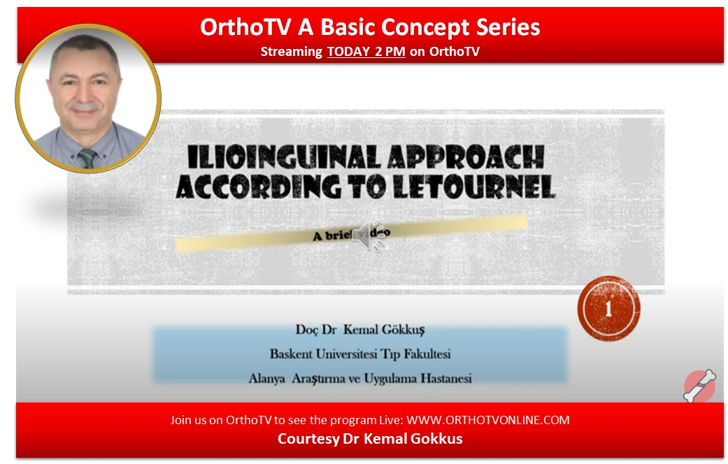 - WhatsApp Image 2020 10 15 at 10 - Basic Concept Series: Ilioinguinal Approach According to the Letournel. by Dr Kemal Gokkus