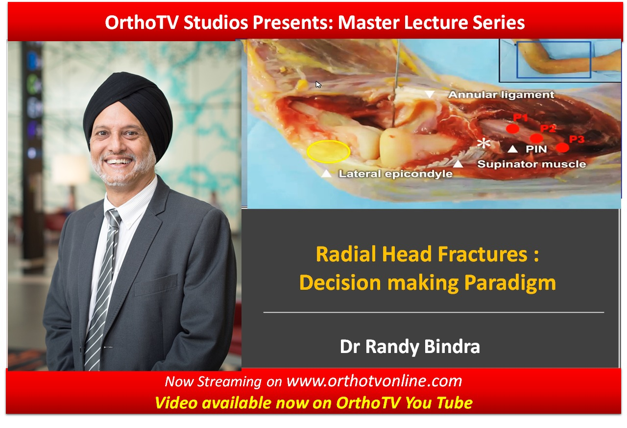- WhatsApp Image 2020 10 15 at 11 - OrthoTV Master Lecture Series: Radial Head Fractures :  Decision making Paradigm Dr Randy Bindra