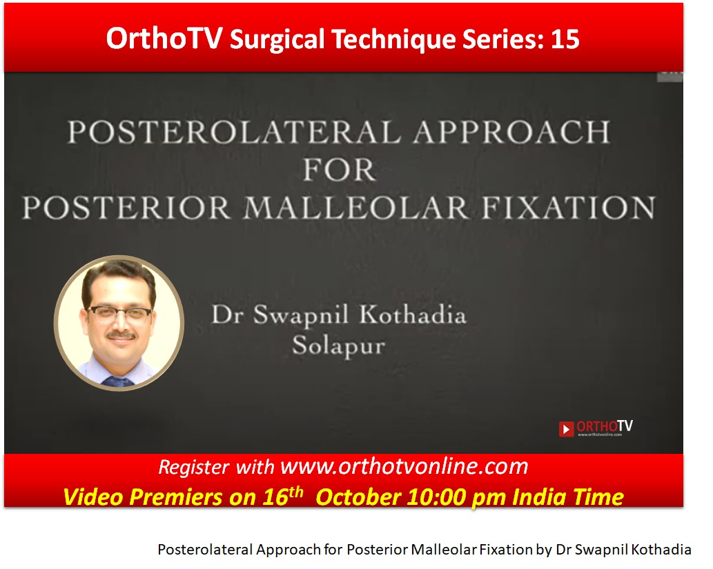- WhatsApp Image 2020 10 16 at 1 - Posterolateral Approach for Posterior Malleolar Fixation by Dr Swapnil Kothadia