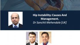 Arthroplasty Conclave 14: Hip Instability: Causes And Management. Dr Sanchit Mehendale [UK] & Hip- Pelvic Discontinuity From Basics To Custom. Dr Nikhil Shah [UK]