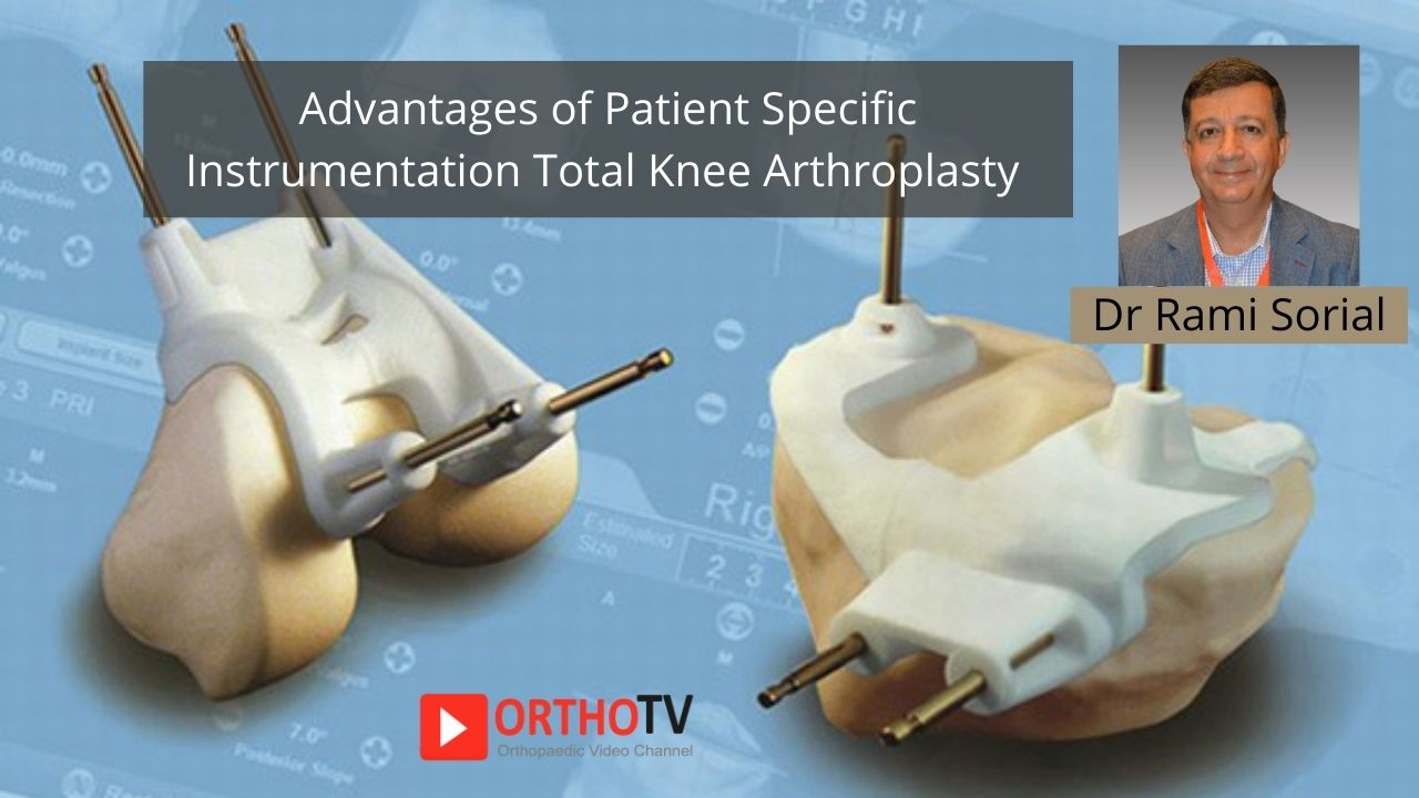 Advantages of Patient Specific Instrumentation Total Knee Arthroplasty Dr Rami Sorial
