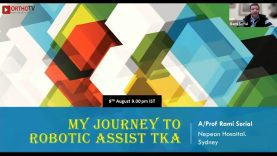My Journey and Insights into Robotic Total Knee Replacement : Prof Rami Sorial