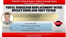 Total Shoulder Replacement with Intact Bone and Soft Tissue: A basic Concept Lecture by Dr Kemal Gokkus